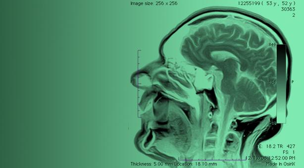 Una aplicación de la res. magnética nuclear: diagnóstico por imágenes.