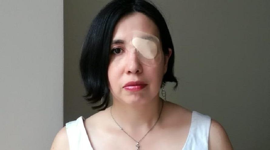 Adriana Bastías recibió el premio 100 Mujeres Líderes con un parche en el ojo para homenajear a los cientos de chilenos que perdieron la vista al ser reprimidos por la policía.